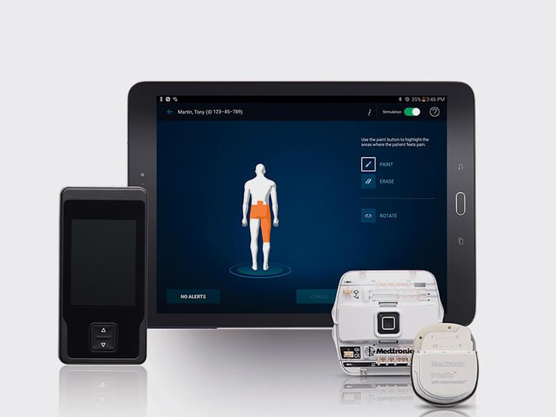 Implantan dispositivo que alivia el dolor crónico: Es el primer caso en Chile y Latinoamérica