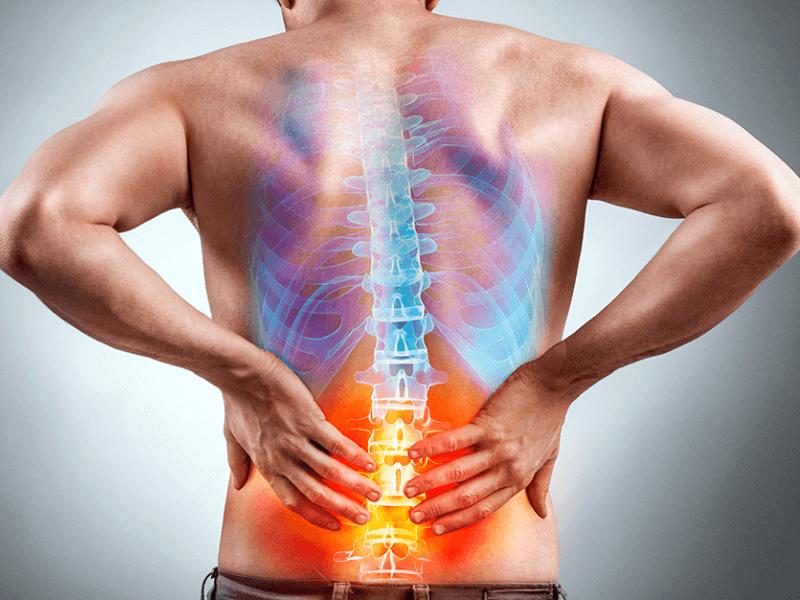 Lumbalgia: radiografía del dolor lumbar